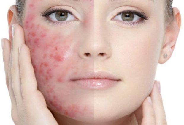 Cele mai bune vitamine pentru acnee